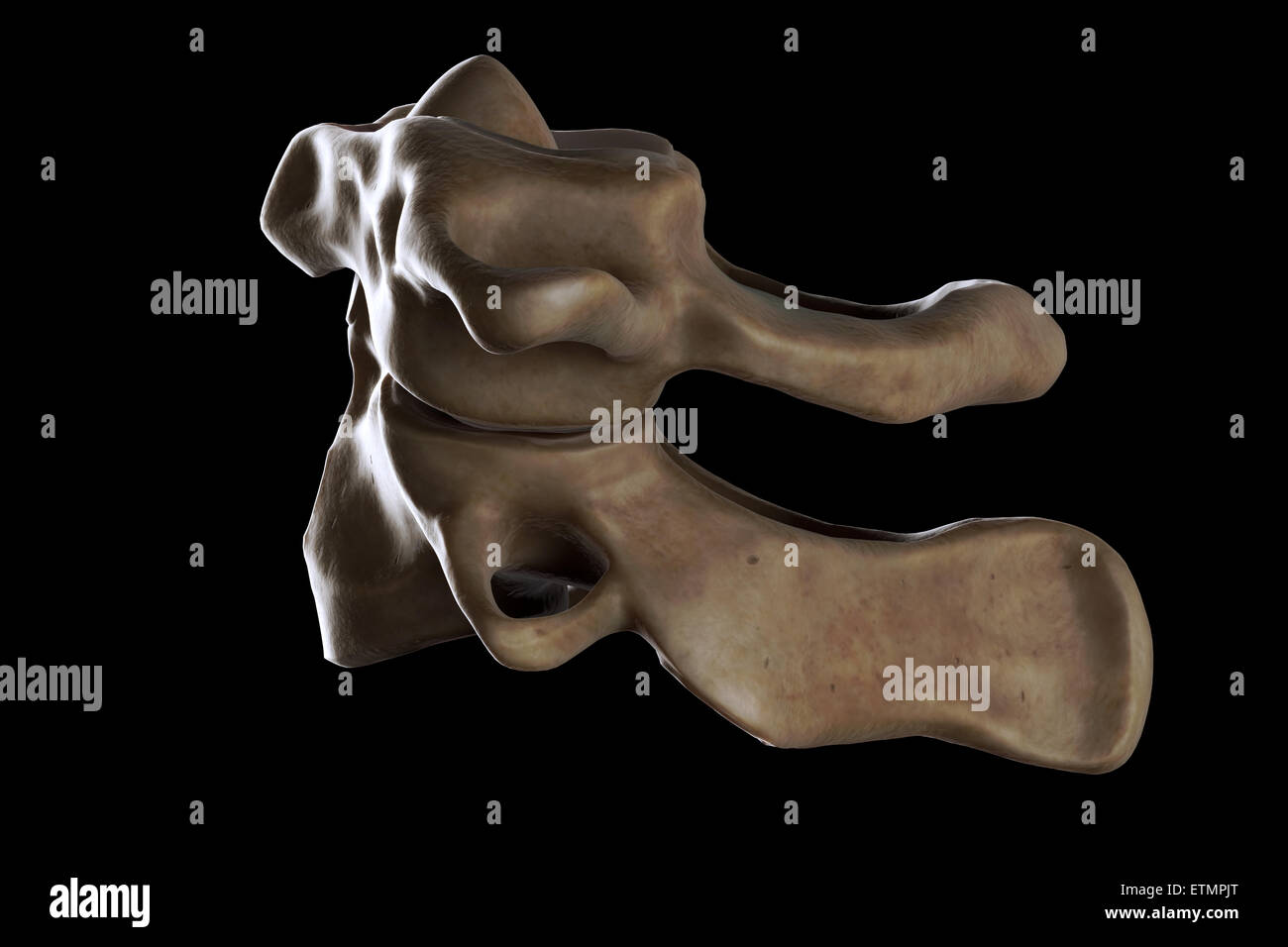 Illustration showing the atlas and axis vertebrae of the neck. - Stock Image
