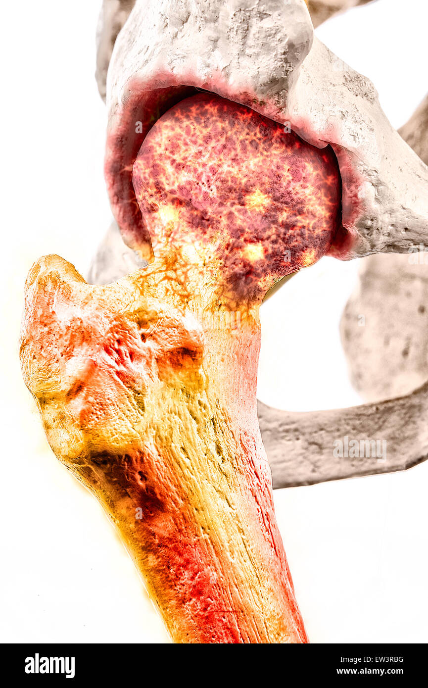 Illustrative graphic of Ankylosing Spondylitis - a degenerative form of arthritis affecting the spine and sacroiliac - Stock Image