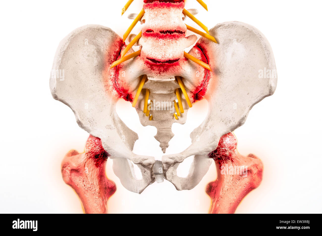 Illustrative graphic of Ankylosing Spondylitis - a degenerative form of arthritis affecting the spineand sacroiliac - Stock Image