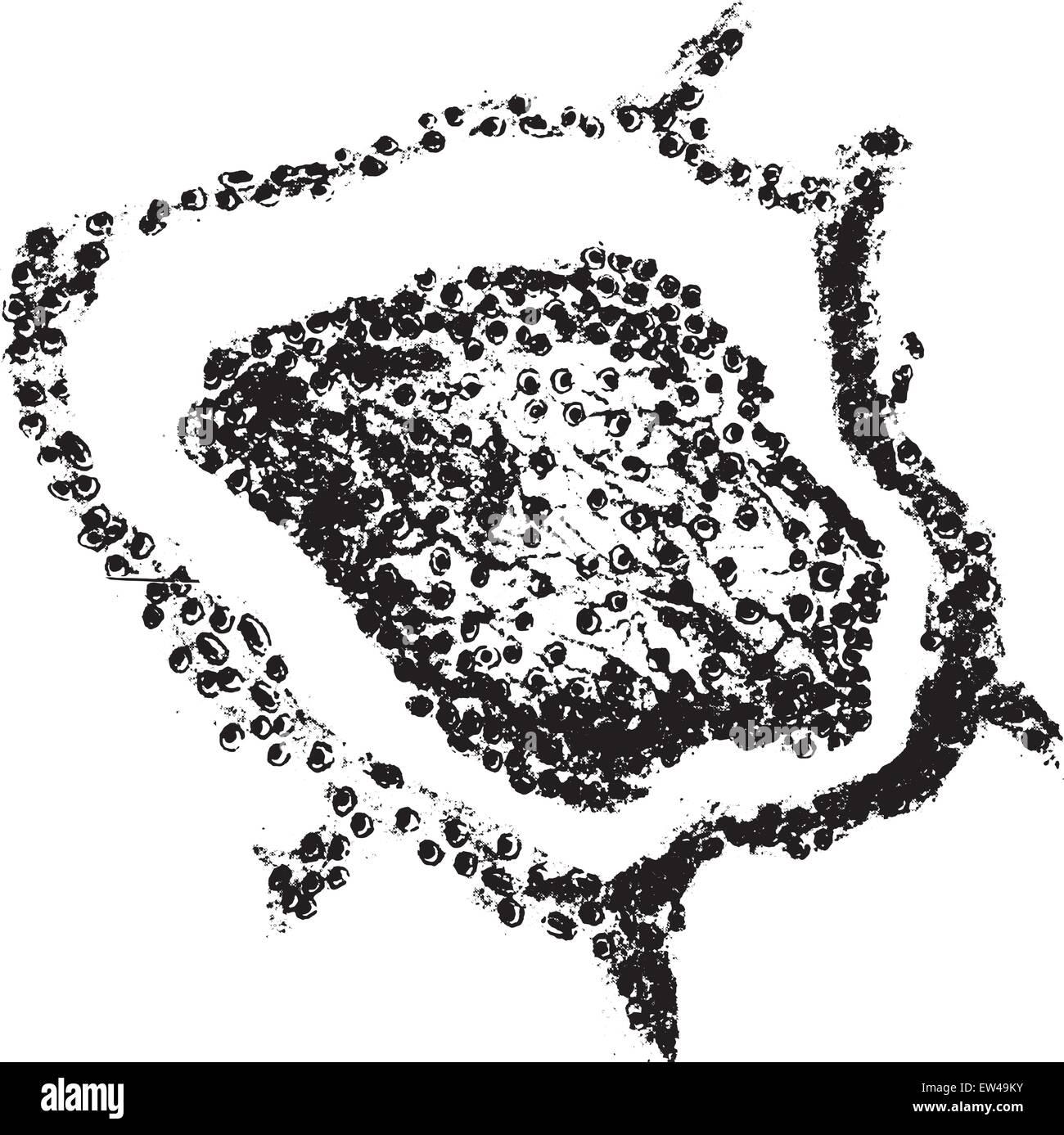 Croupous pneumonia, vintage engraved illustration. - Stock Vector