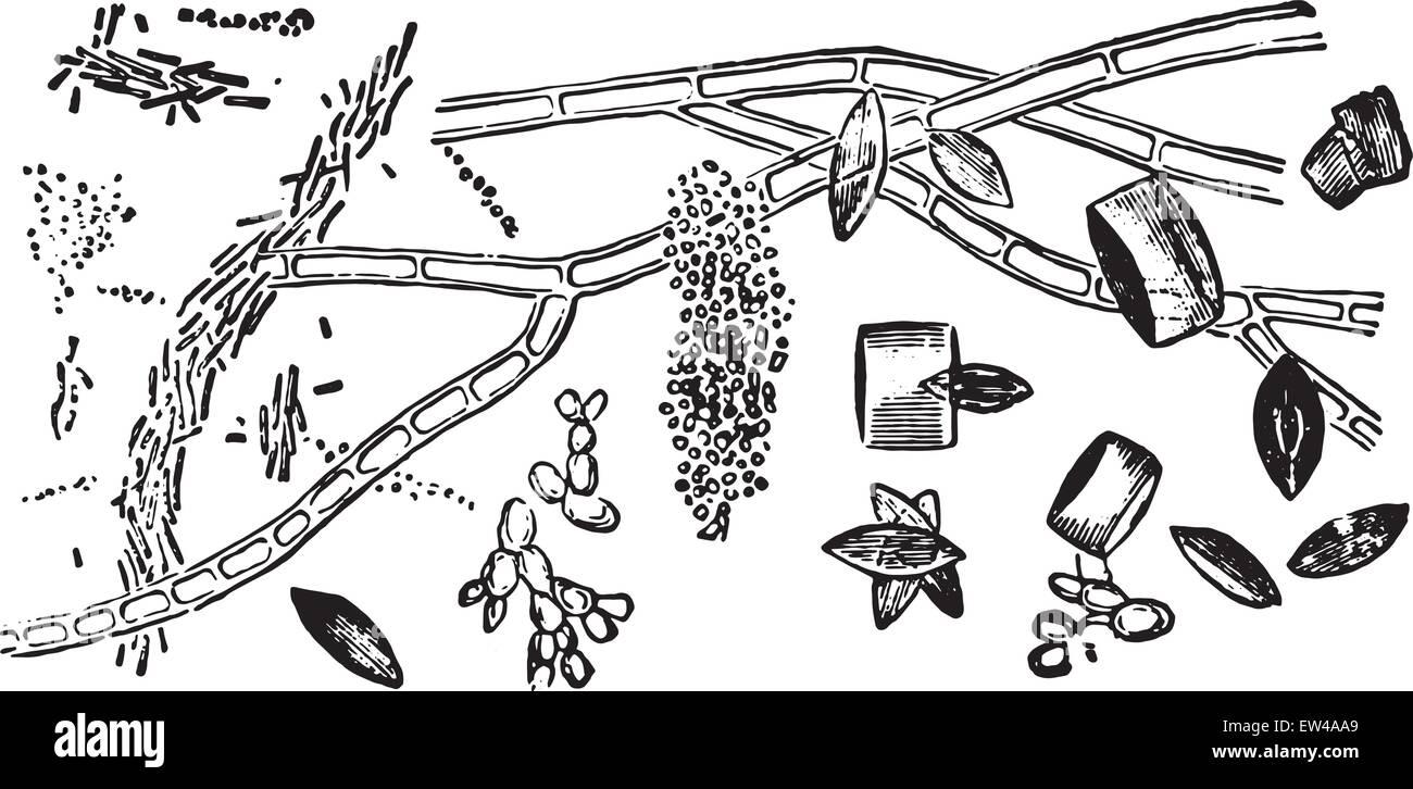 Crystals of uric acid, vintage engraved illustration. - Stock Image