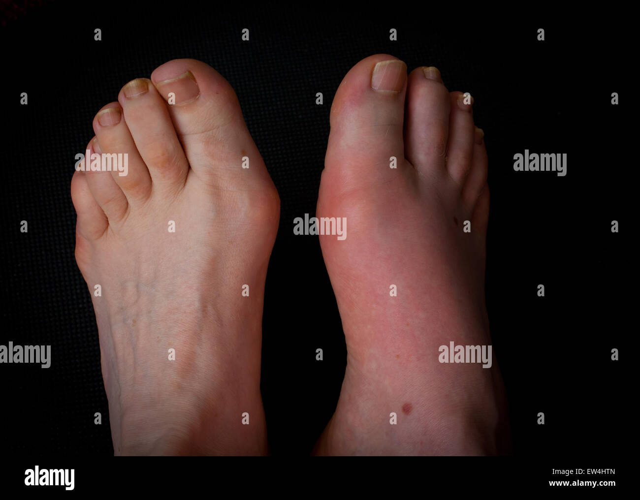 Gouty Toe! One of the most painful and debilitating afflictions affecting the feet. Needle-like crystals of Uric - Stock Image