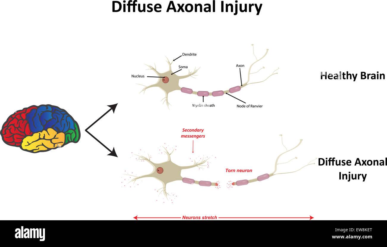 Diffuse Axonal Injury - Stock Image