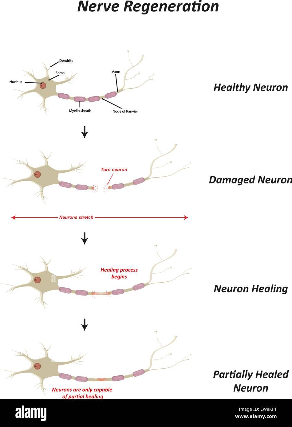 Nerve Regeneration - Stock Image
