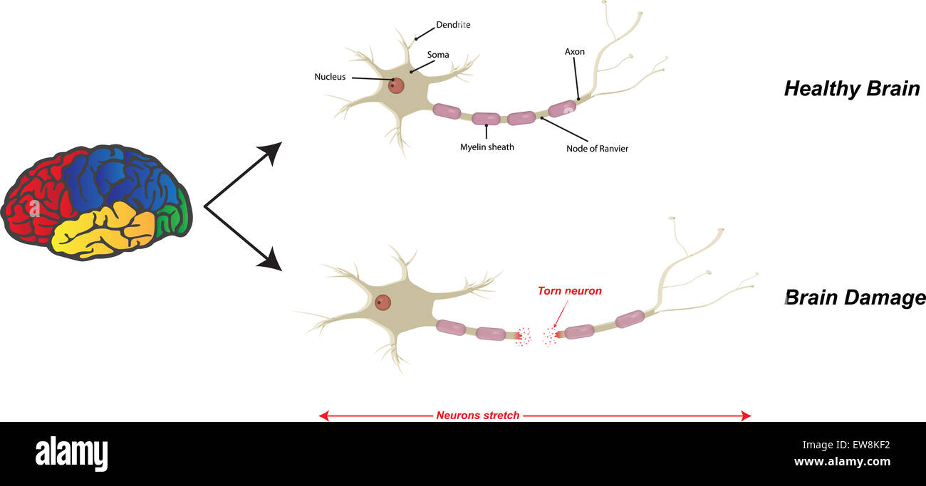 Brain Damage - Stock Image