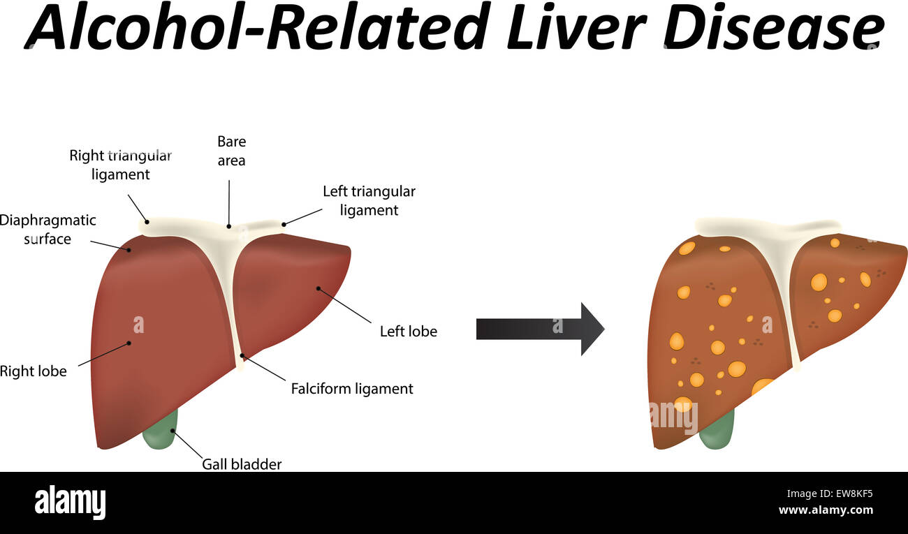 Alcohol Related Liver Disease - Stock Image