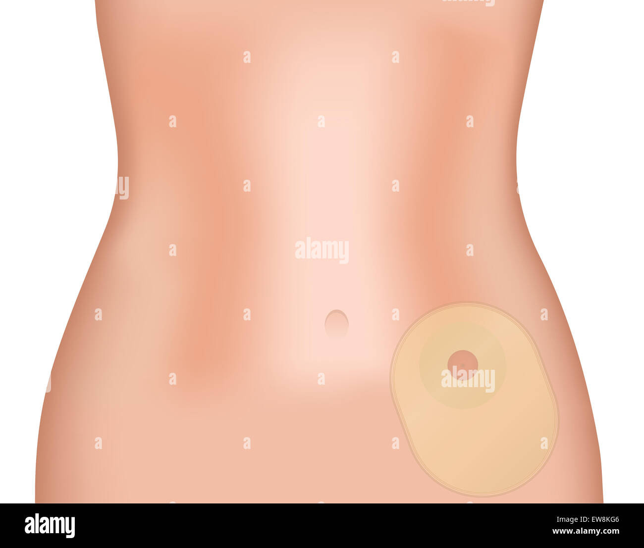Person Wearing Colostomy Bag - Stock Image