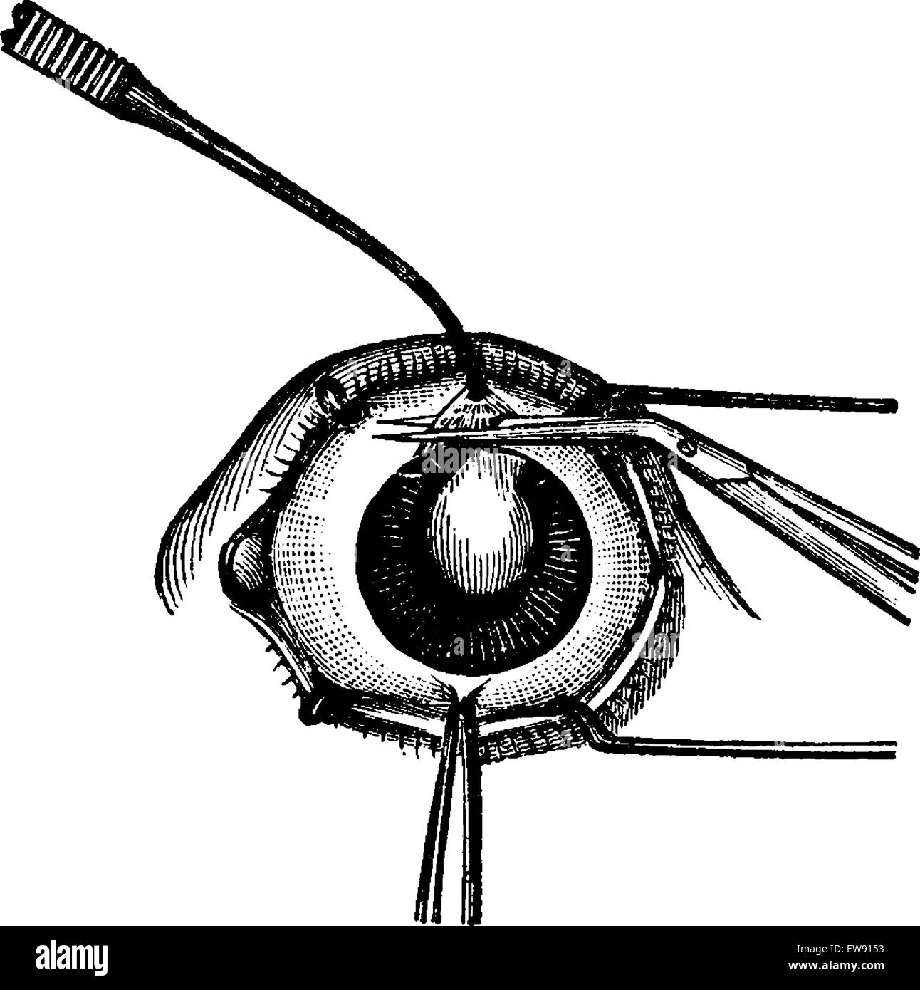 Iridectomy, showing pincers removing a flap from the upper part of the iris prior to cataract surgery, vintage engraved - Stock Vector