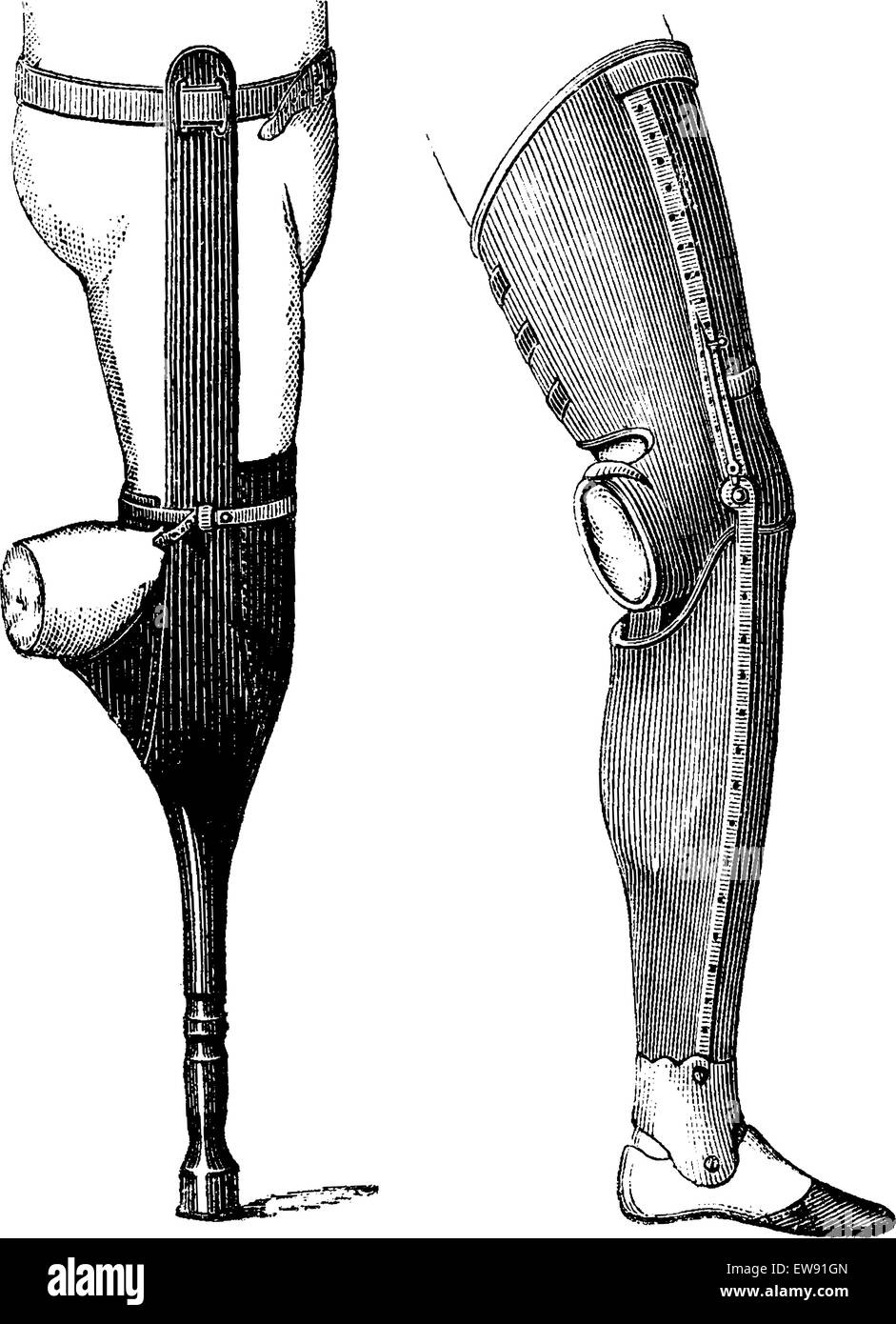 Artificial Legs with Pestle (left) and with Foot (right) for Below-knee Amputation, vintage engraved illustration. - Stock Vector
