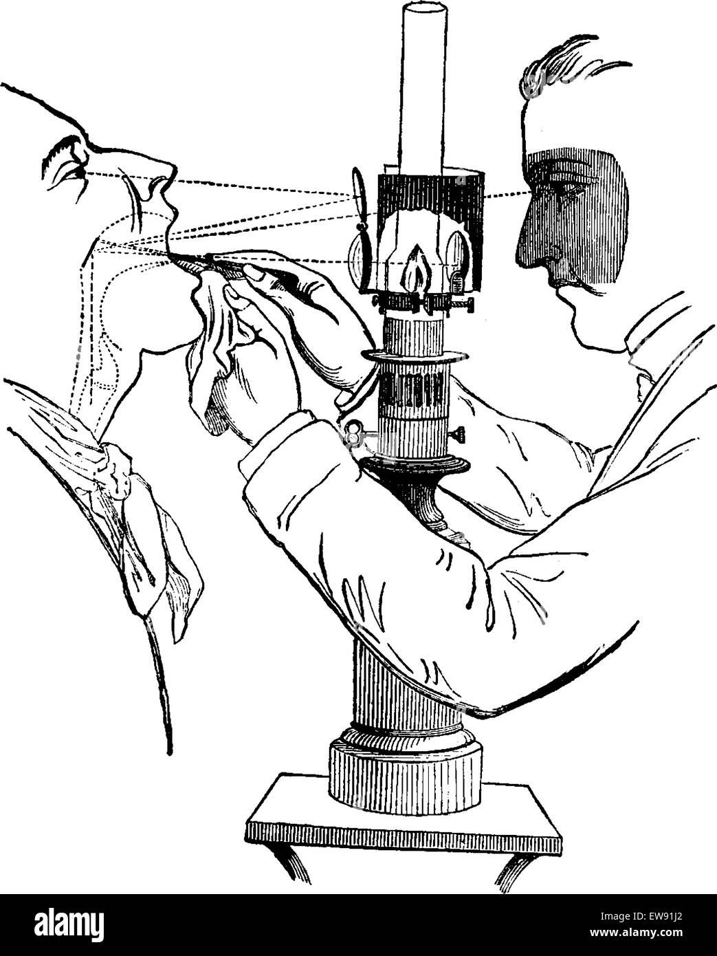 Laryngoscope Stock Photos & Laryngoscope Stock Images - Alamy