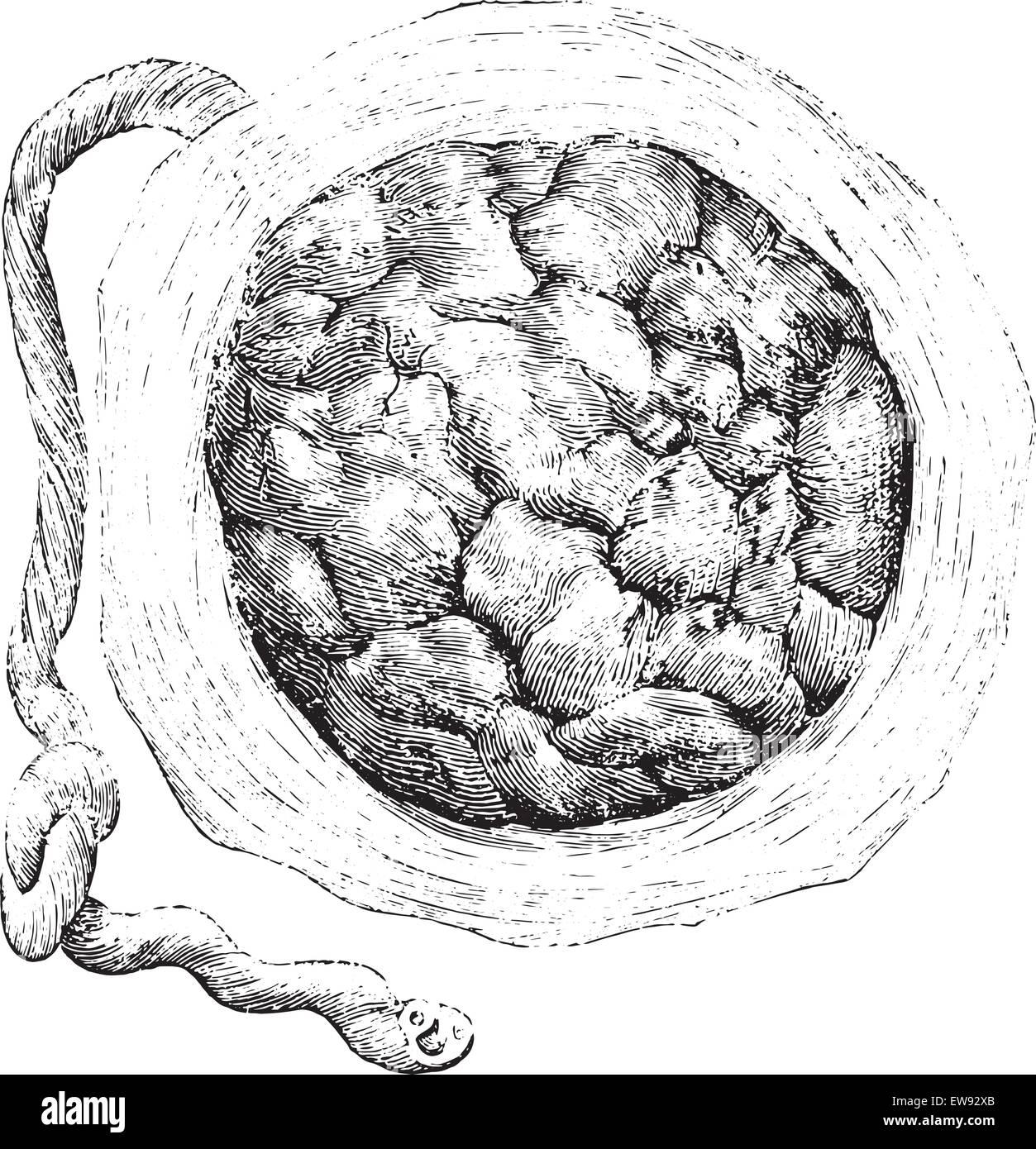 Placenta (external or uterine side), vintage engraved illustration. Usual Medicine Dictionary by Dr Labarthe - 1885. - Stock Image