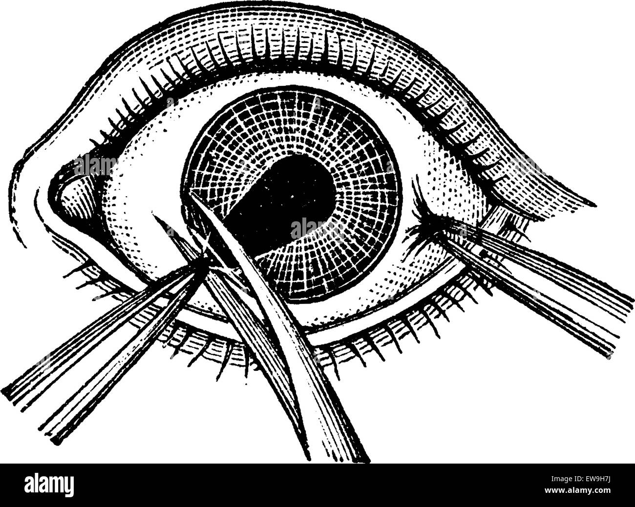 Iridectomy, showing pincers removing a flap of the iris, vintage engraved illustration. Usual Medicine Dictionary - Stock Vector