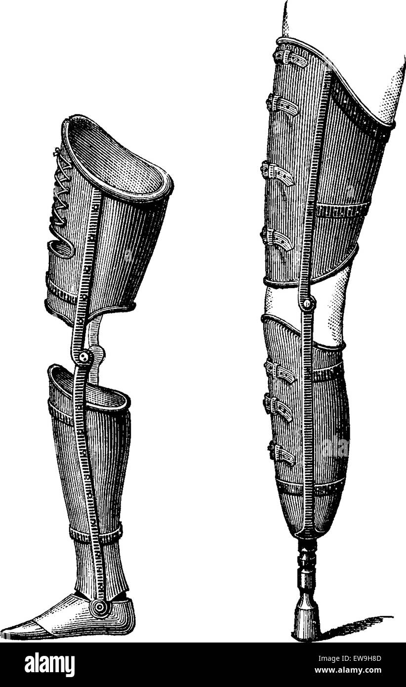 Artificial Legs, shown with foot (left) and with pestle (right), vintage engraved illustration. Usual Medicine Dictionary - Stock Vector