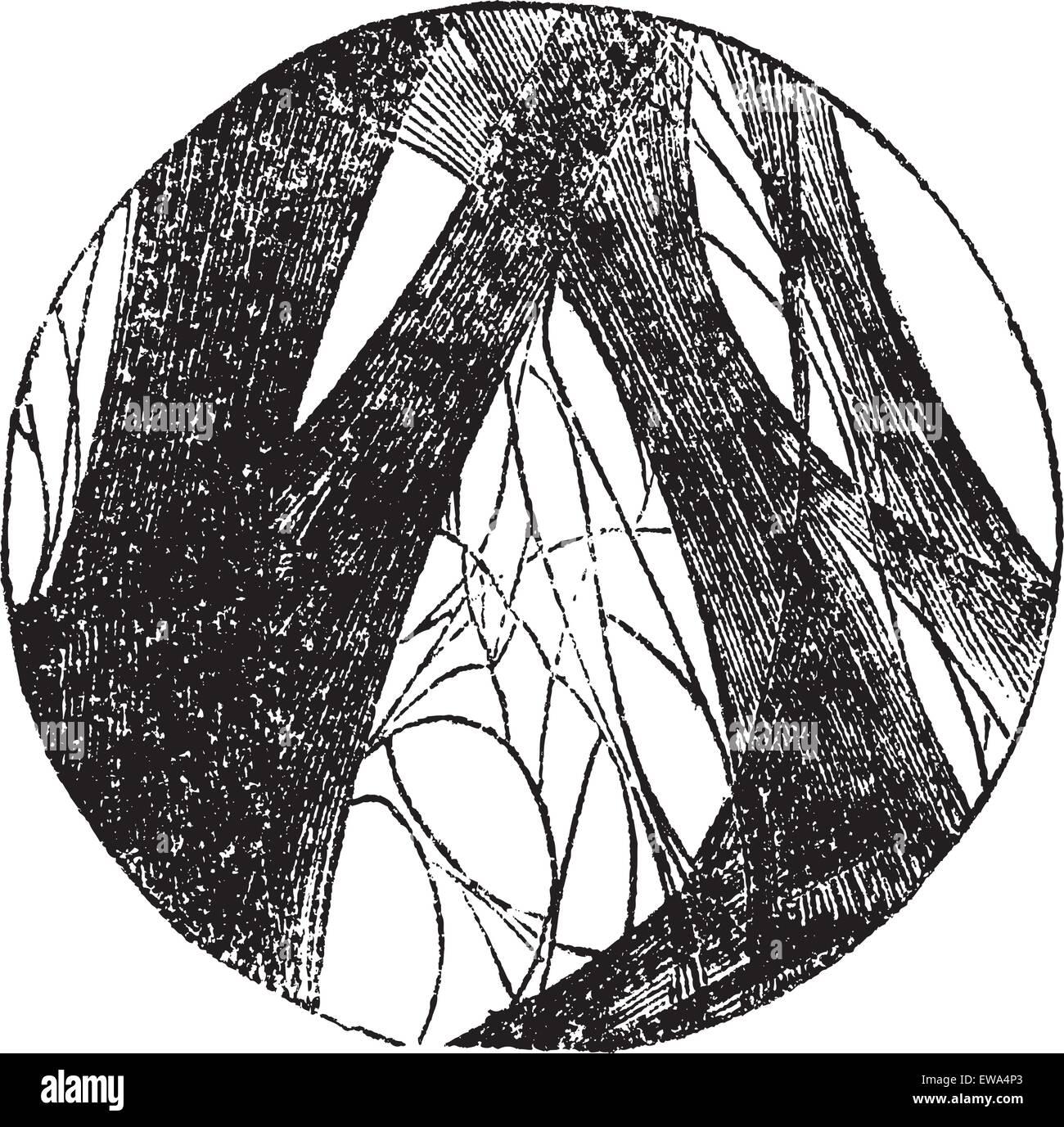 Coagulated fibrin, vintage engraving. Old engraved illustration of Coagulated fibrin. - Stock Vector