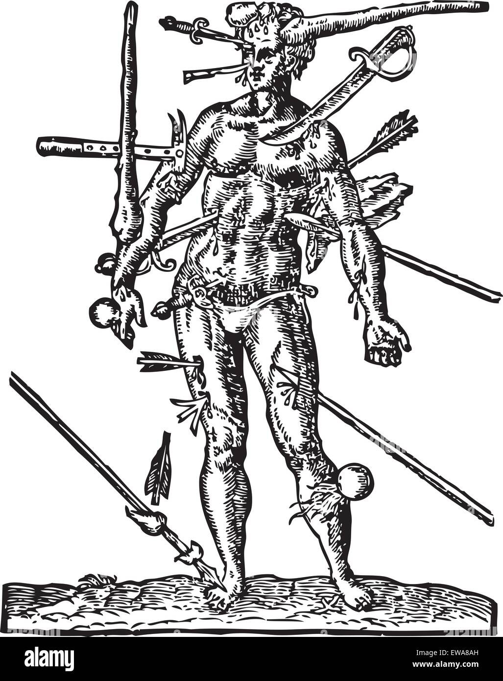 The Man of Wounds old engraving Illustration from  the Opera Chirurgica, by Ambroise Paré 1594. Shows a man - Stock Vector
