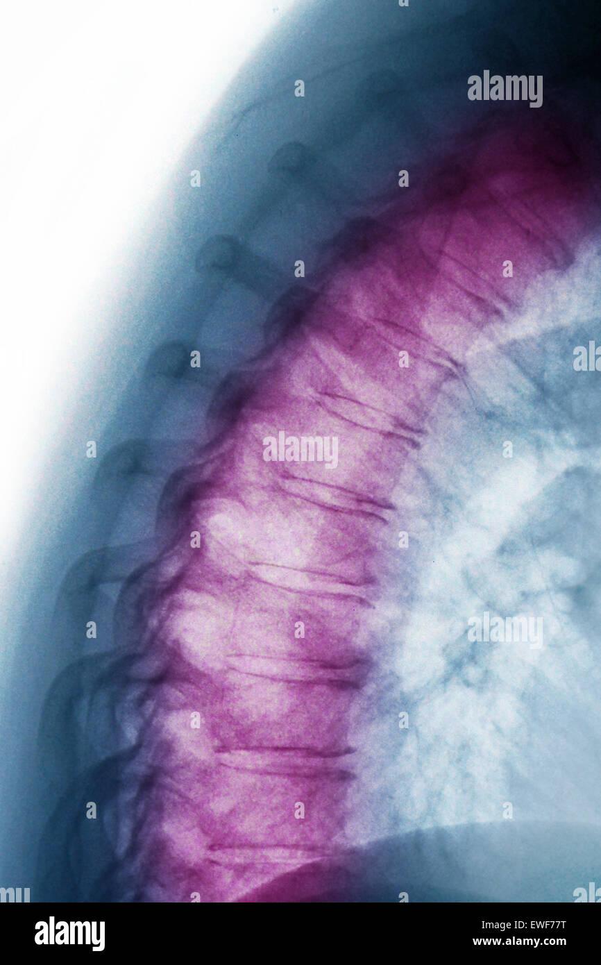 VERTEBRAL OSTEOARTHRITIS, X-RAY - Stock Image