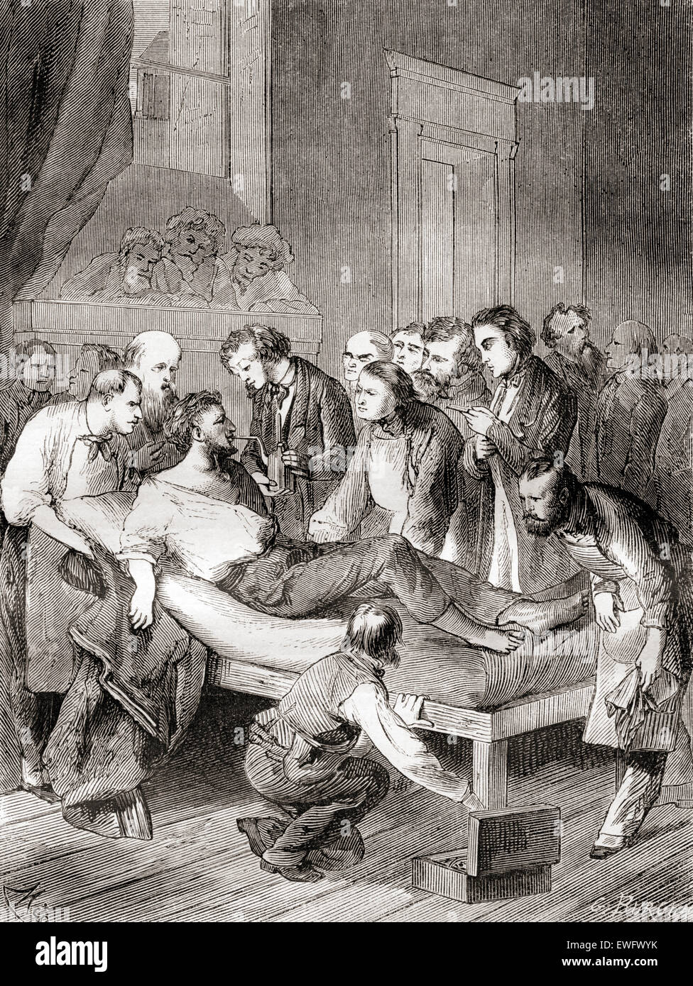 The first public demonstration of the use of inhaled ether as a surgical anesthetic in 1846 by an American dentist, - Stock Image