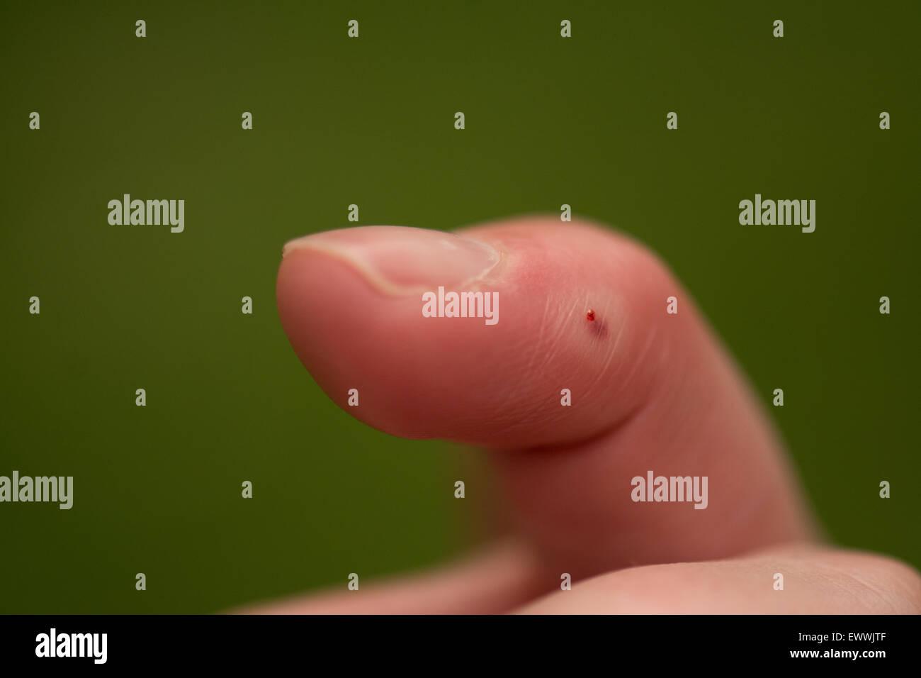 honey bee (Apis) sting on female human finger - Stock Image