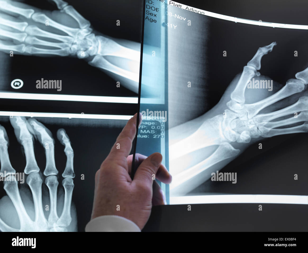 Doctors hand holding up hand xray in hospital - Stock Image