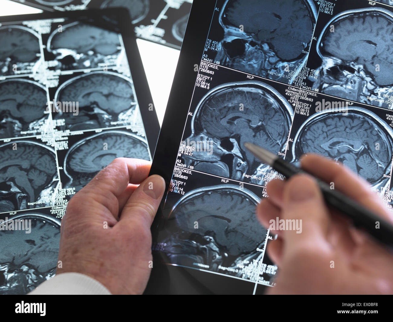 Close up of doctor viewing a healthy brain scan - Stock Image
