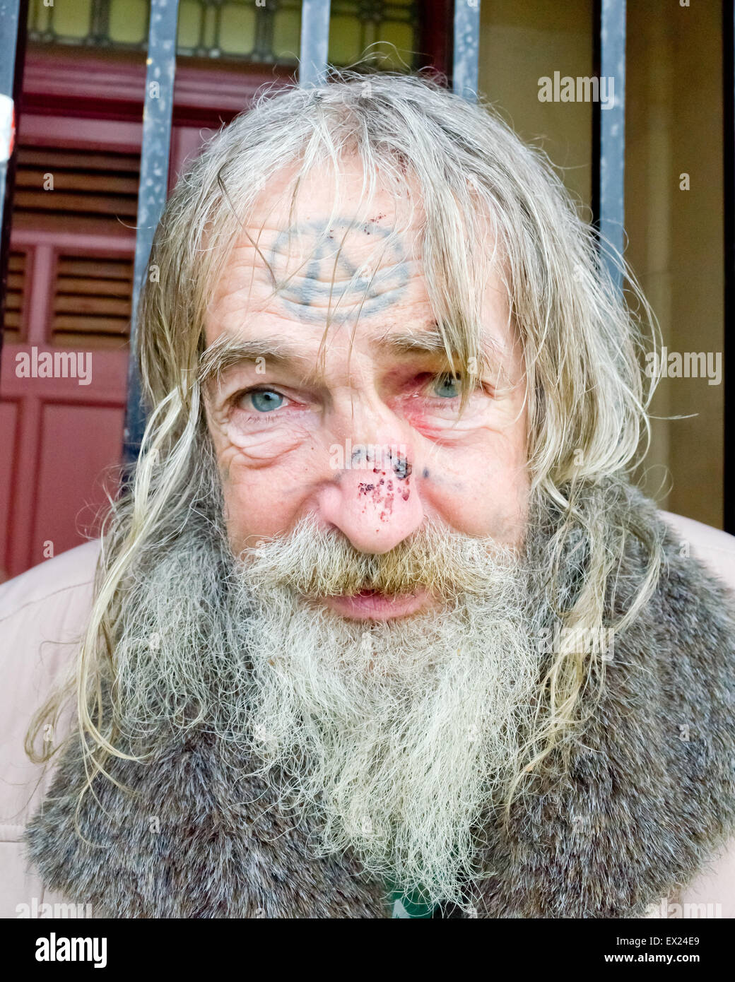 homeless man with broken nose and tattoo on face with a for anarchy