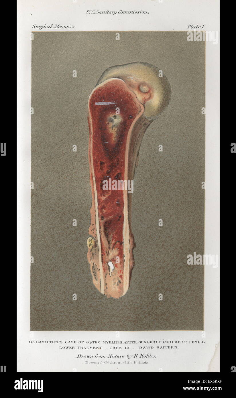 Infection in bullet wound, Surgical Memoirs of the War of the Rebellion, Vol 1, 1870 - Stock Image