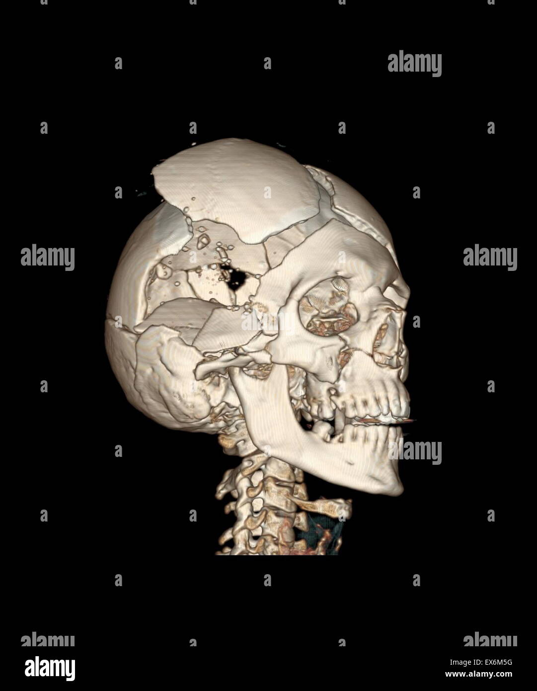 right anterior view of a three-dimensional CT reconstruction of the bony skull with bullet wounds shows the hole - Stock Image