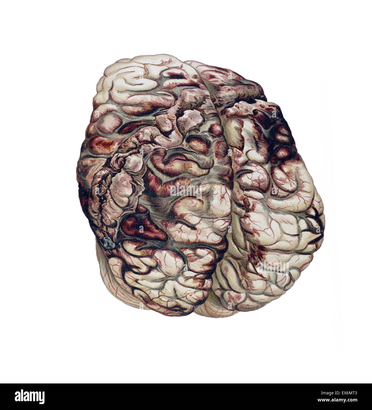 Encircling Gunshot-wound in the Brain, 1898 In atlases and manuals of legal medicine, 19th-century forensic pathologists - Stock Image