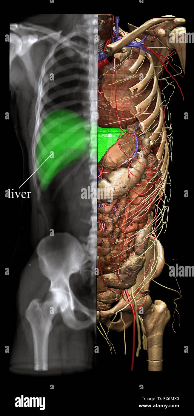 Different viewing modes such as X-ray imaging may be chosen from any direction and for any part of the image. The - Stock Image