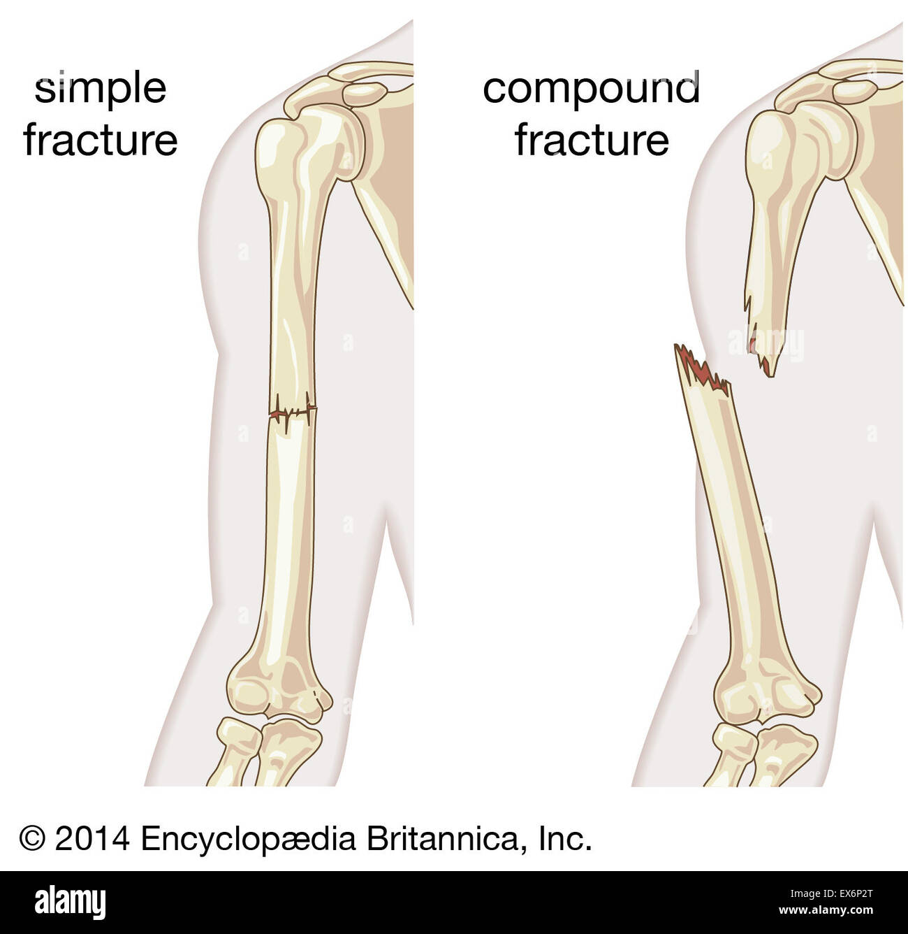 simple and compound fracture - stock image