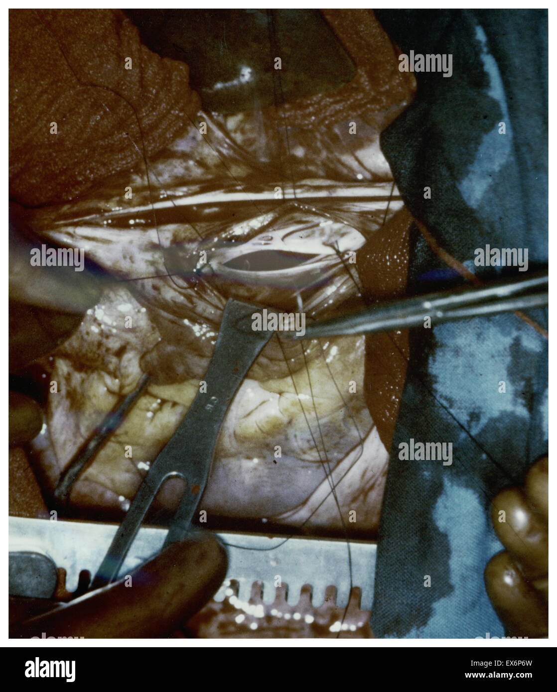 1953 First picture of the inside of the heart in an open heart operation by American surgeon Henry Swan II (1913 - Stock Image