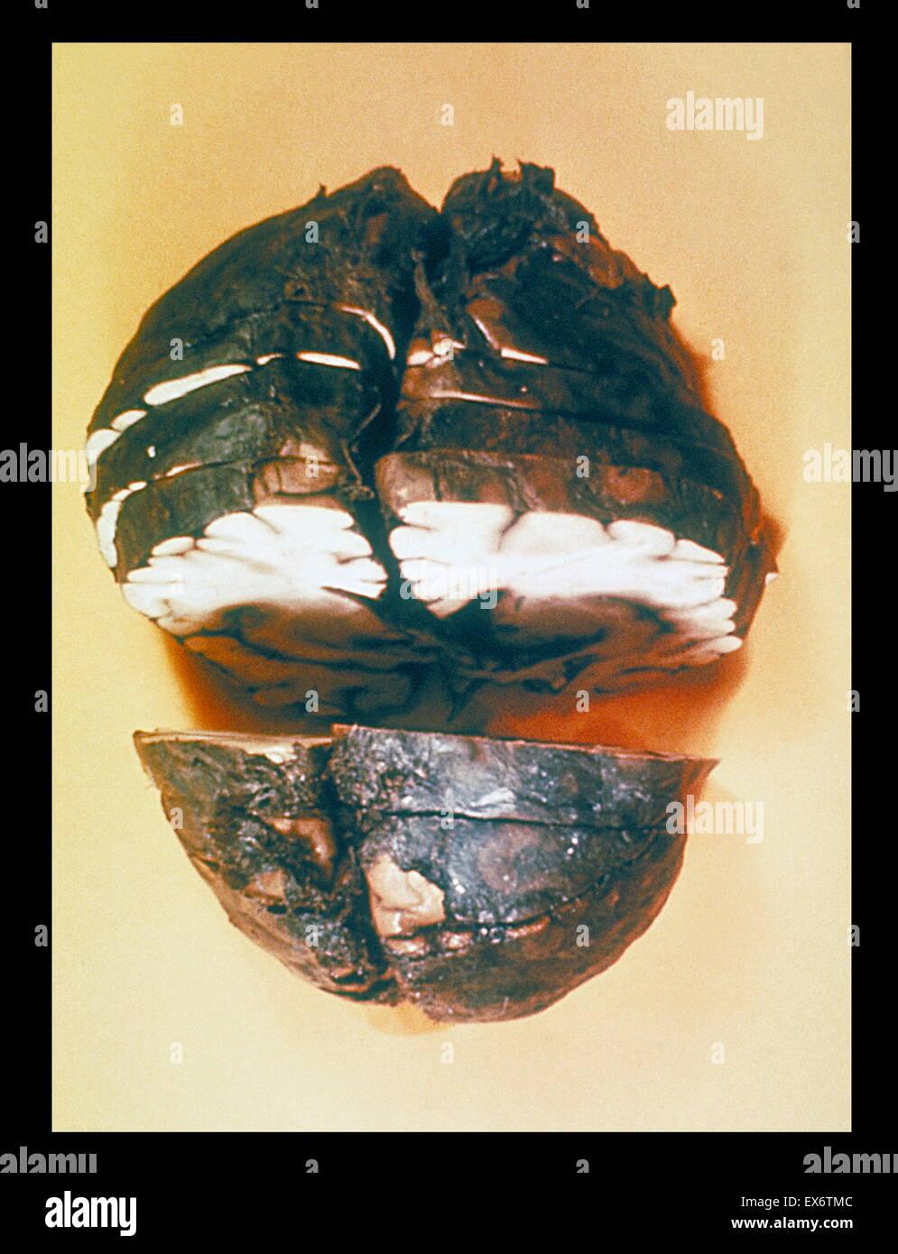 Gross pathology of fixed, cut brain showing haemorrhagic meningitis due to anthrax - Stock Image