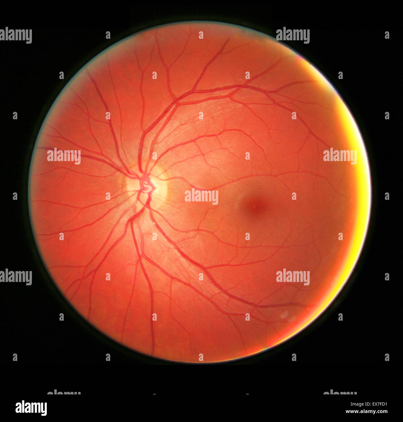 Fundus Of The Eye Stock Photos & Fundus Of The Eye Stock Images - Alamy