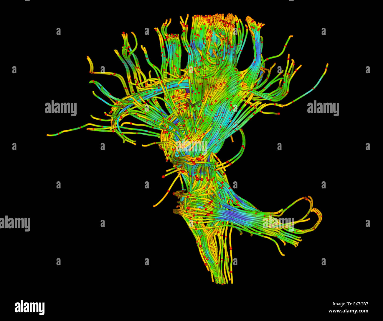 Fiber tractography image of the human brain - Stock Image