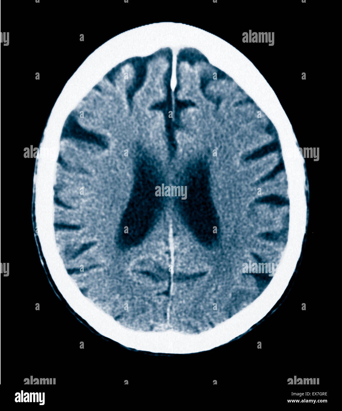 CT scan of an 84 year old man with Alzheimer's disease.  CT shows brain atrophy. - Stock Image