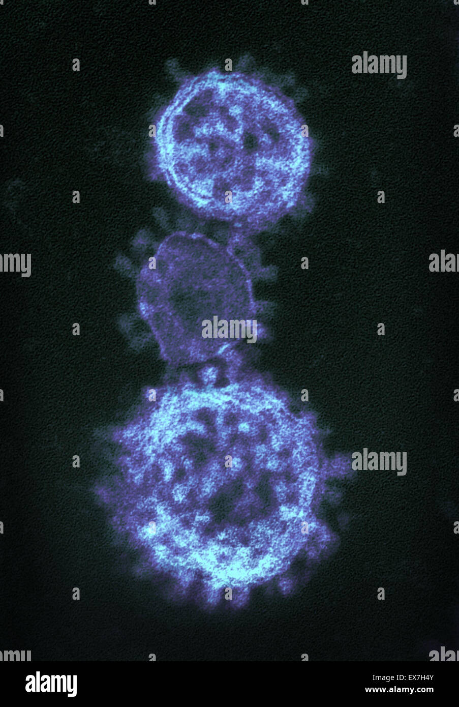 Colorized transmission electron micrograph of Middle East Respiratory Syndrome Coronavirus (MERS-CoV) virions - Stock Image