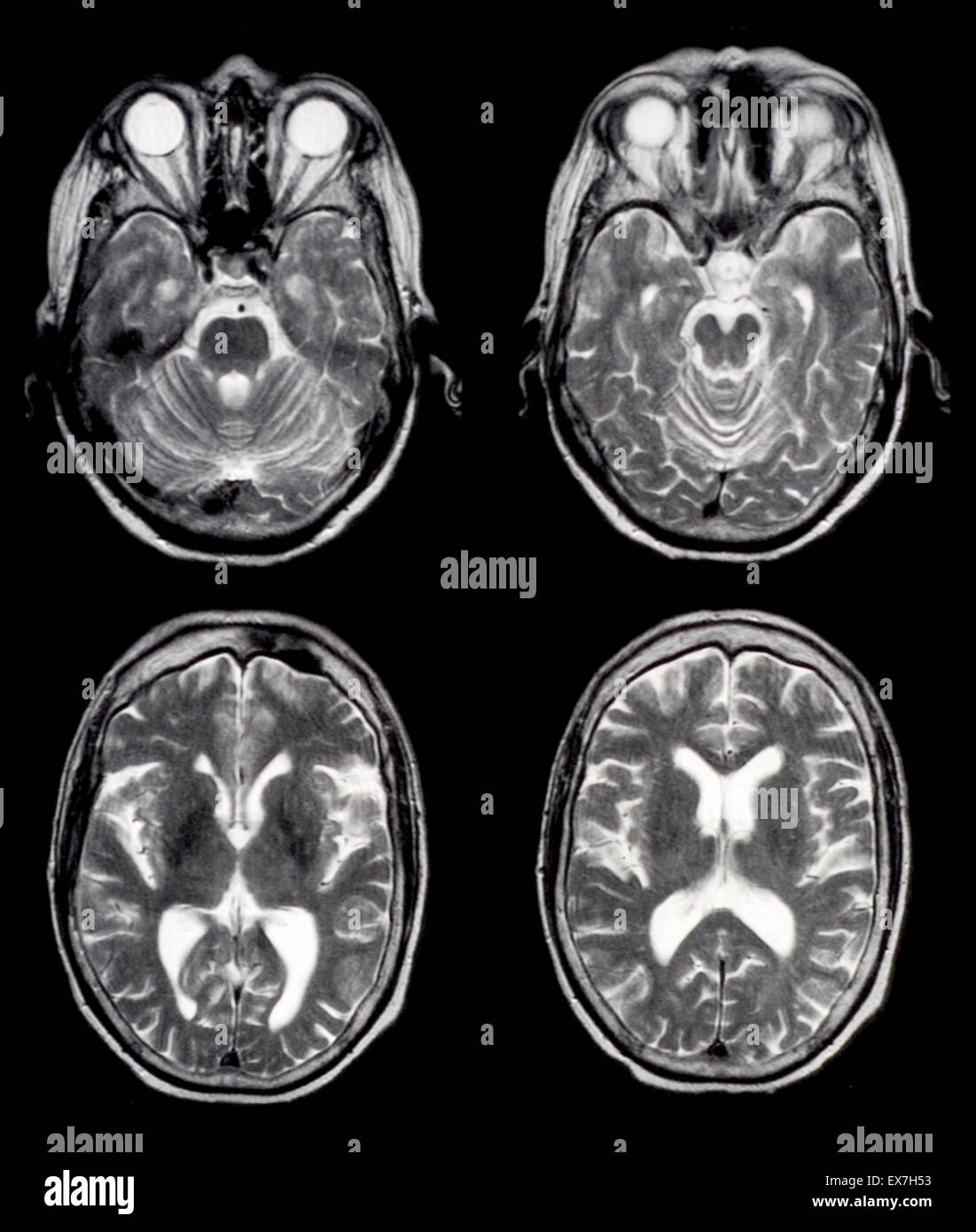 normal brain mri - Gecce.tackletarts.co