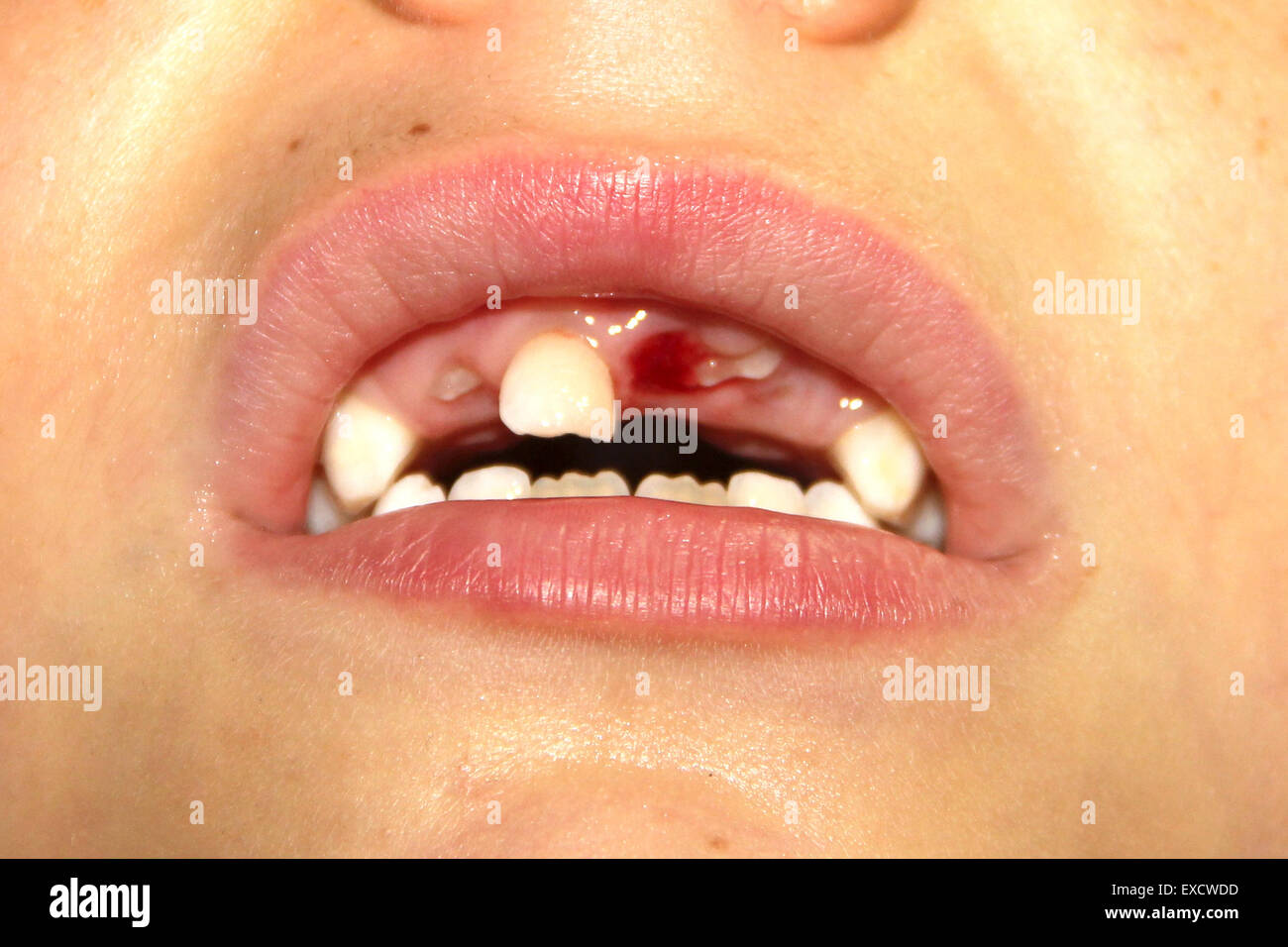 Baby teeth just fallen and new appearing Stock Photo