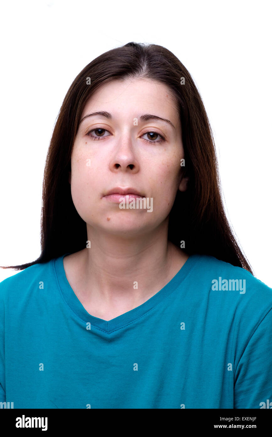 Young woman with swollen cheek suffering from painful toothache - Stock Image
