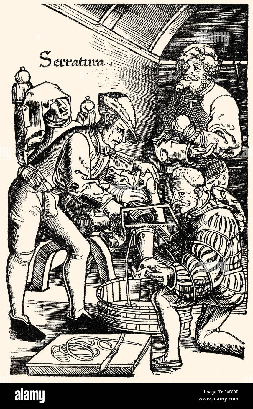 German surgeon, amputation of leg without anaesthesia, Hans van Gersdorff, 1528, 'Feldtbuch der Wundartzney' (Field Stock Photo
