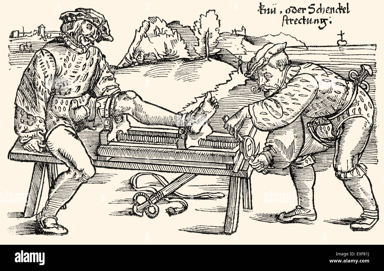 Leg extension on a stretching rack, orthopedic therapy, woodcut from 'Feldtbuch der Wundartzney' by Hans - Stock Image