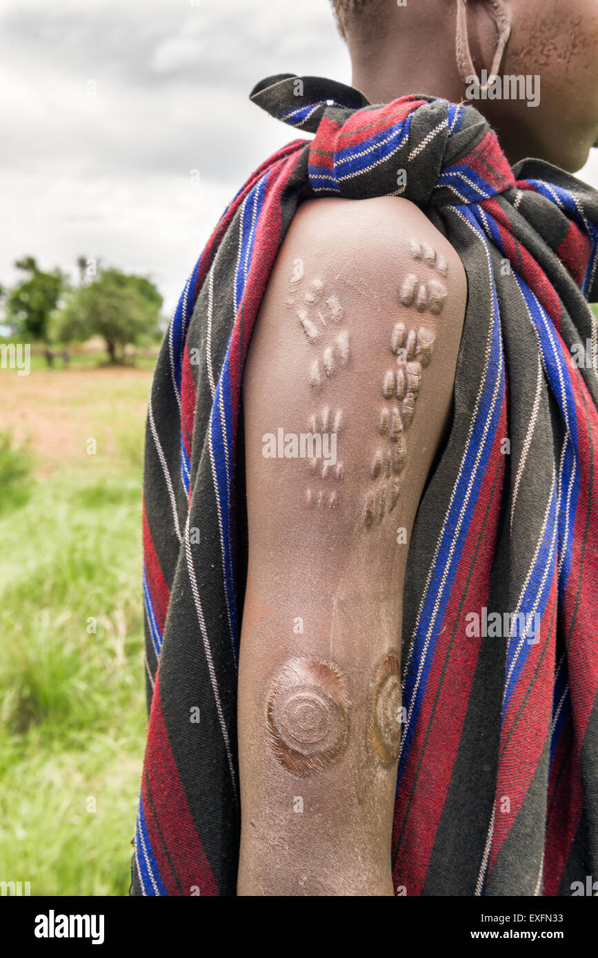 Traditional scarification typical for the Mursi tribe in Ethiopia - Stock Image