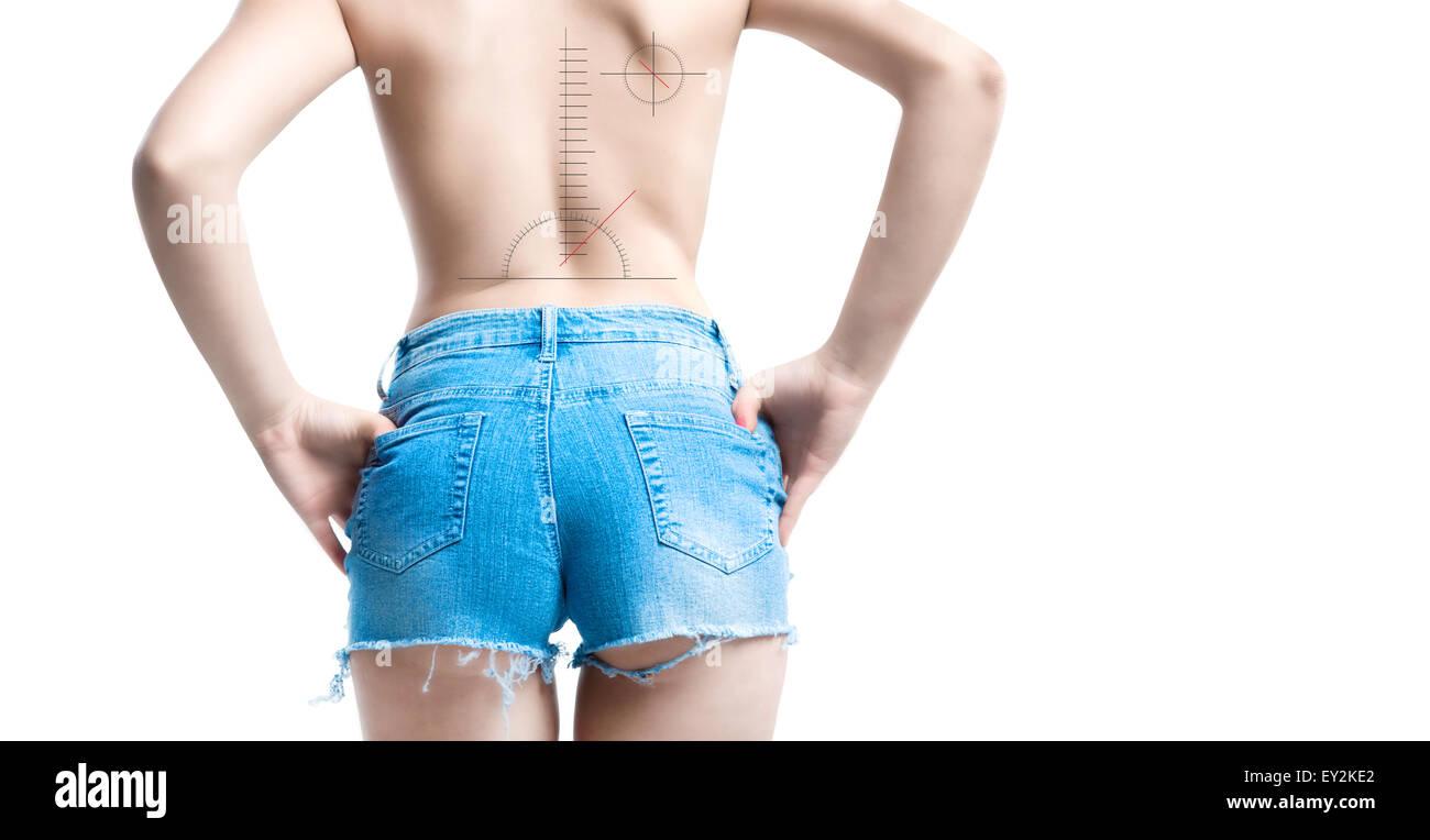 incorrect posture vertebral column disease concept with graphic symbols - Stock Image