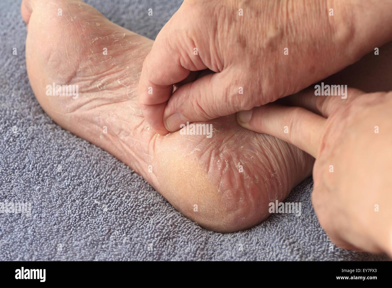 A man peeling his athletes foot dry skin Stock Photo