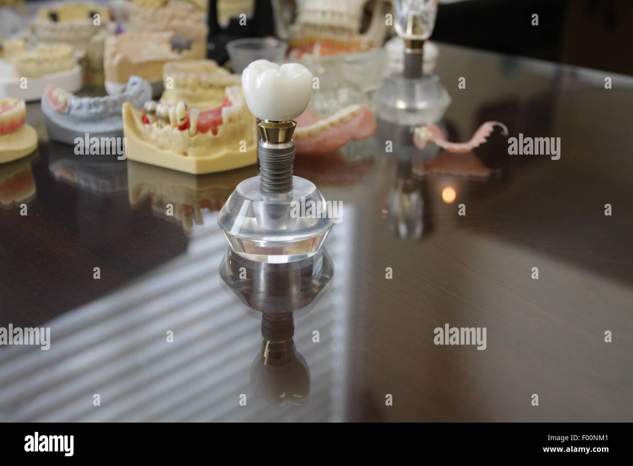 Giant tooth on crystal stand with negative space and reflections - Stock Image