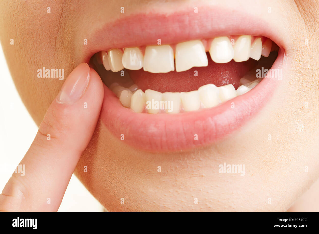 Woman with inflammation of gums in her mouth holding finger on aching tooth - Stock Image