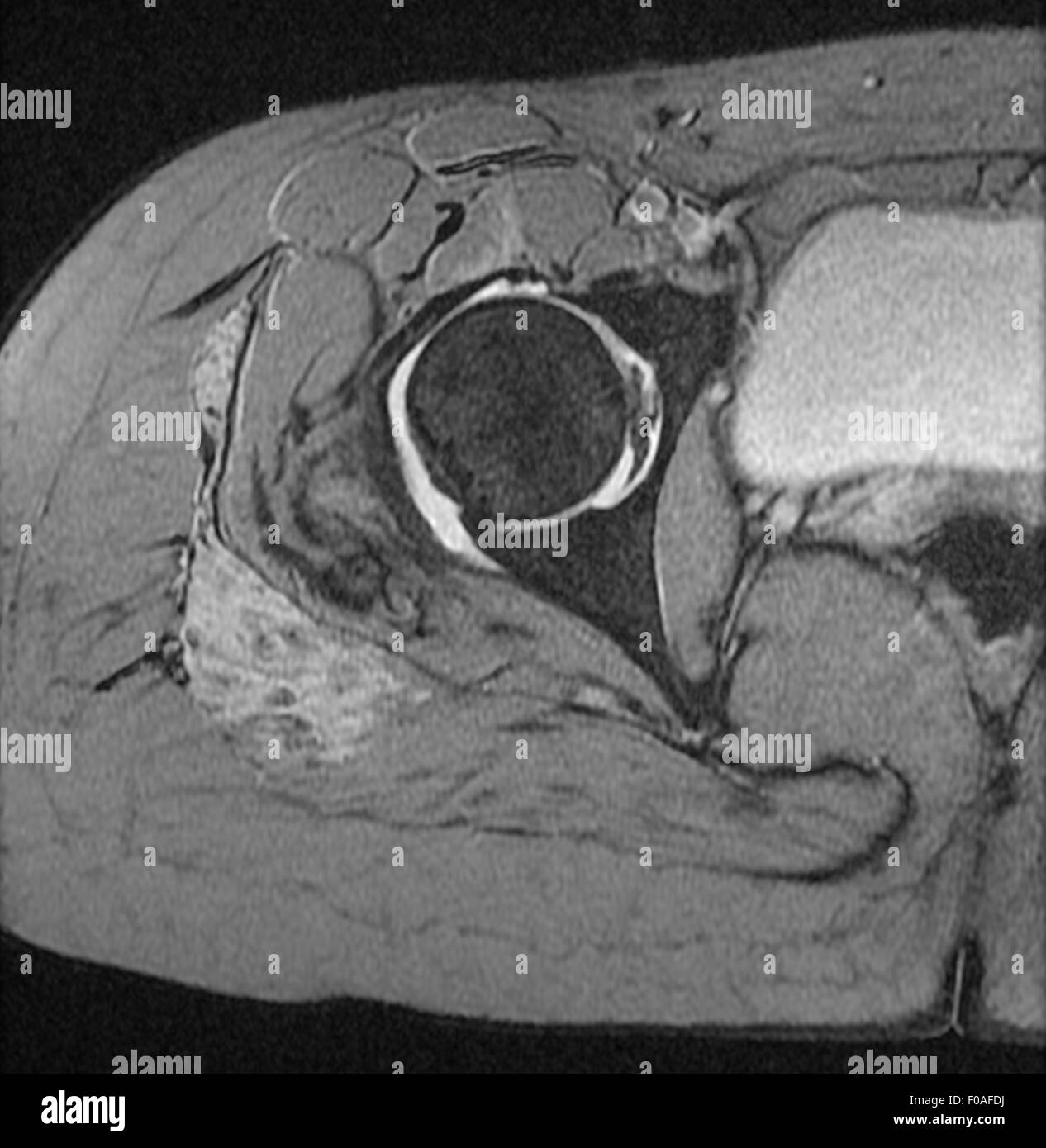 MRI of 20 year old female hip with signs of Hemangioma on upper right thigh - Stock Image