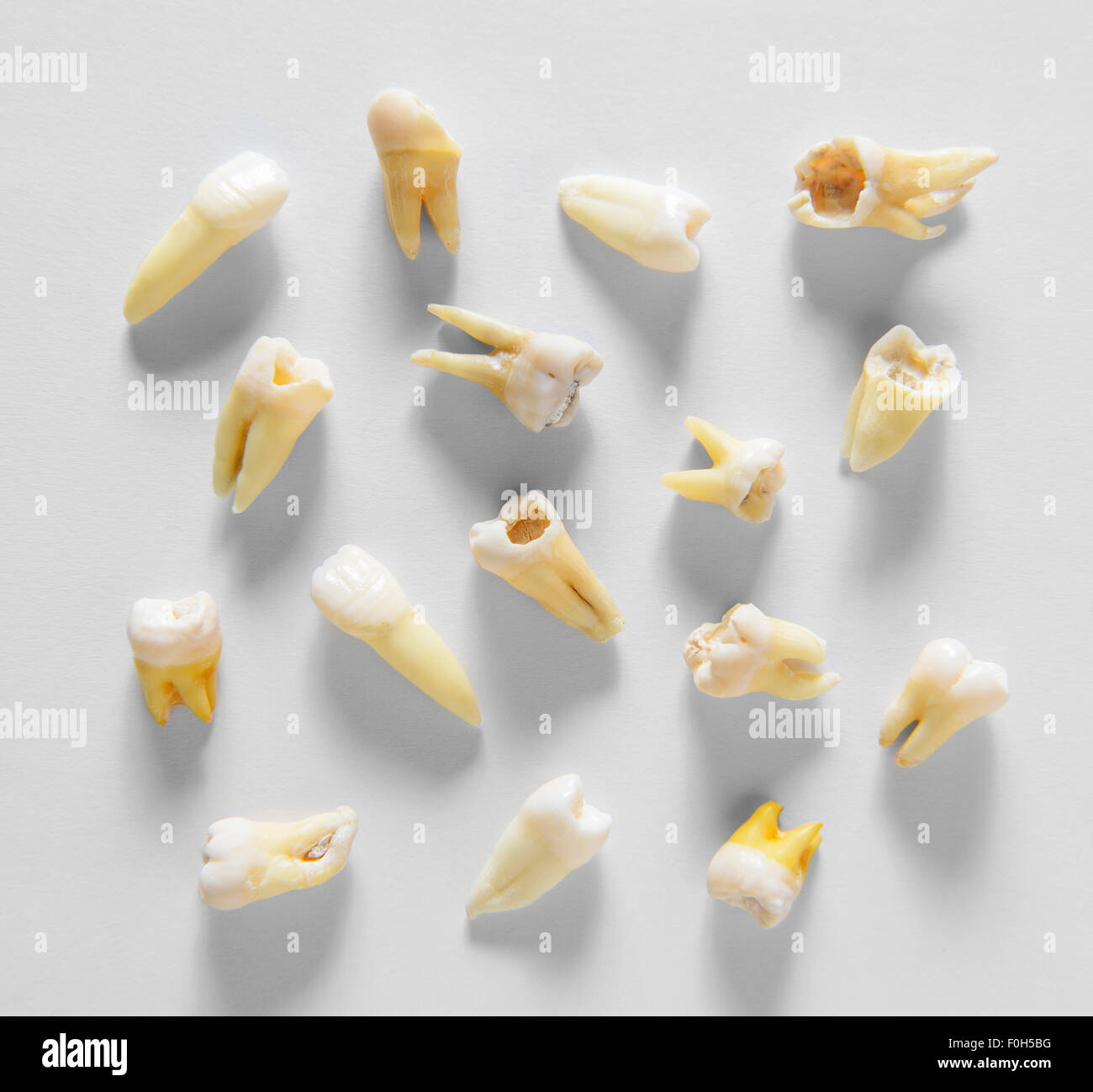 Remote root human teeth - Stock Image