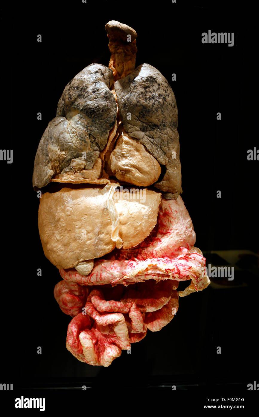 Innere Organe Stock Photos & Innere Organe Stock Images - Alamy