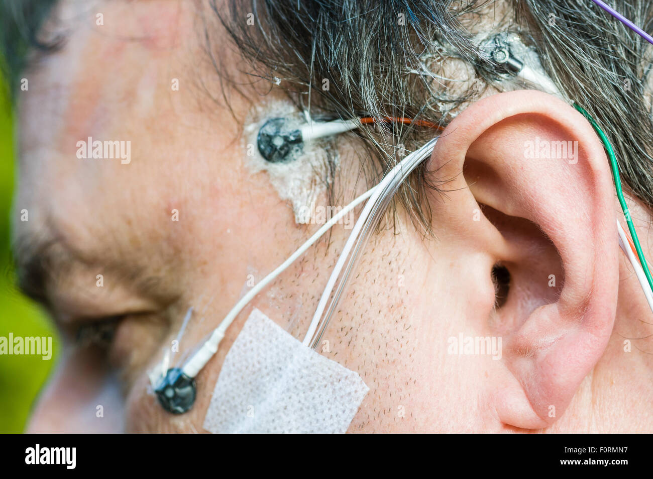 A middle aged man wears polysomnography electrodes to measure brain activity, breathing and movement during sleep. Stock Photo